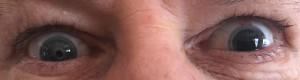 Left eye Lens