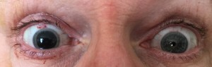Right eye Lens replaced